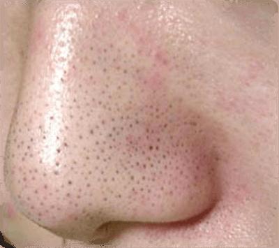 毛穴が詰まったイチゴ鼻