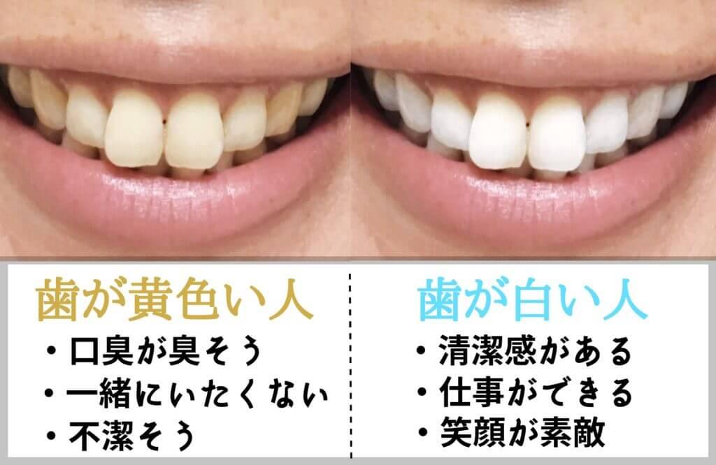歯は黄ばんでいないか
